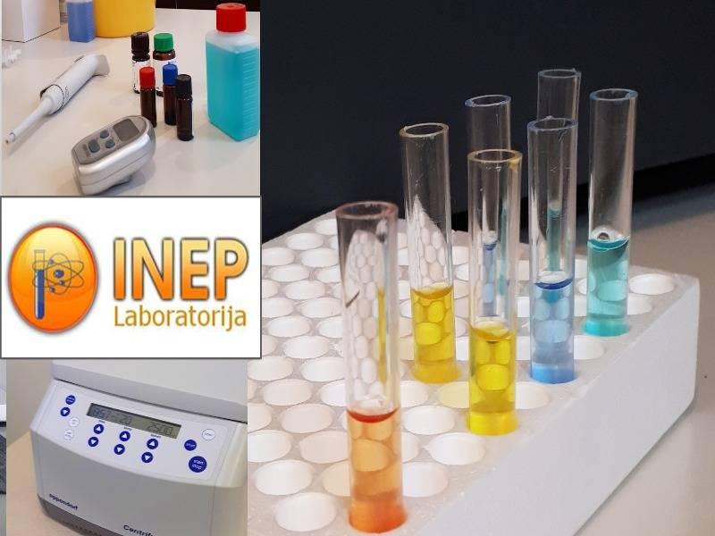 Zdravlje - Laboratorija Inep. Analiza krvi, popust, moj kupon