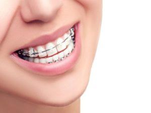Beogad - popusti , Proteze-Ortodontski pregled - Moj kupon.